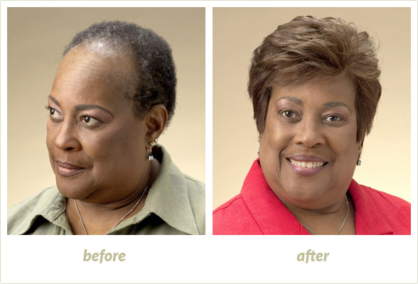 Results Gallery: Birmingham MI Hair Clinic | Shear Pointe Medical - a1