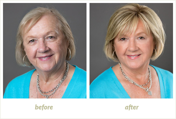 Results Gallery: Birmingham MI Hair Clinic | Shear Pointe Medical - a10