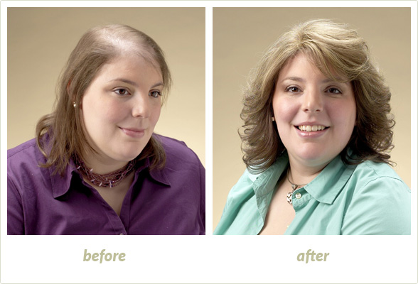 Results Gallery: Birmingham MI Hair Clinic | Shear Pointe Medical - a11