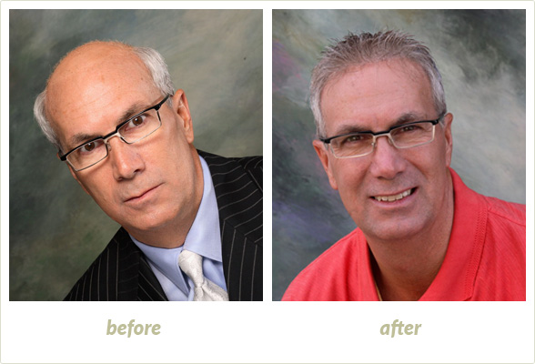 Results Gallery: Birmingham MI Hair Clinic | Shear Pointe Medical - a12