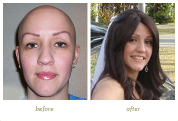 Results Gallery: Birmingham MI Hair Clinic | Shear Pointe Medical - a2