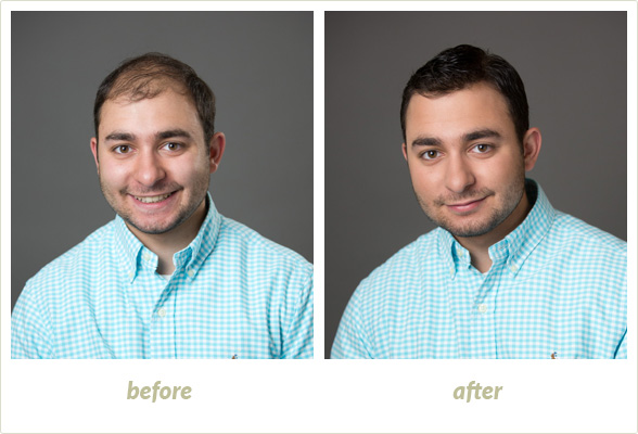 Results Gallery: Birmingham MI Hair Clinic | Shear Pointe Medical - a6