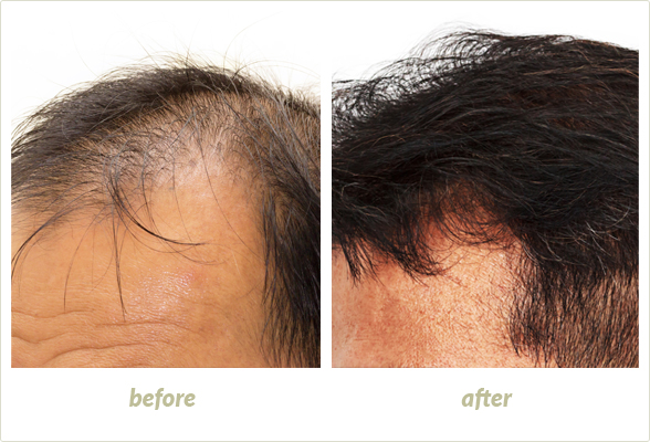 Prevent Hair Loss for Women and Men in Brighton, MI - therapy