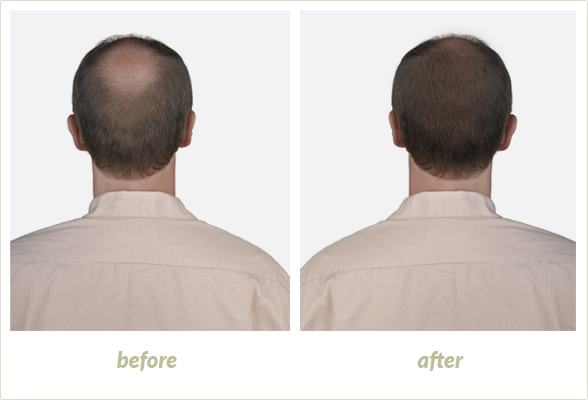 Prevent Hair Loss for Women and Men in Brighton, MI - transplants
